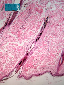 histopathology reveal