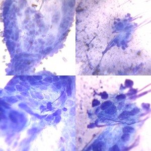 Fig 4 Cytology-1